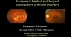 Advances in Medical and Surgical Management of Retinal Disor