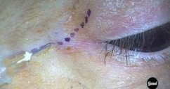 Lateral orbital wall decompression for Graves orbitopathy under a minimal upper skin crease incision - surgery videos