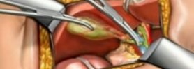 Overview of an Open vs. Minimally Invasive Approach to a Cholecystectomy
