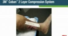 Follow the Roll Application of 3M Coban 2 Layer Compression System