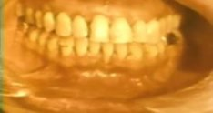 The Laterally Positioned Flap in Periodontics
